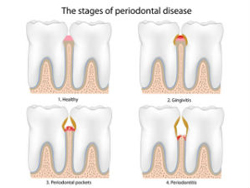 Gum Disease Treatment | Palm Family Dentistry | Jaymie D. Coria DDS | Placentia, CA 92870