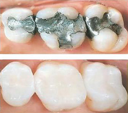 White Fillings   Palm Family Dentistry   Jaymie D. Coria DDS   Placentia, CA 92870